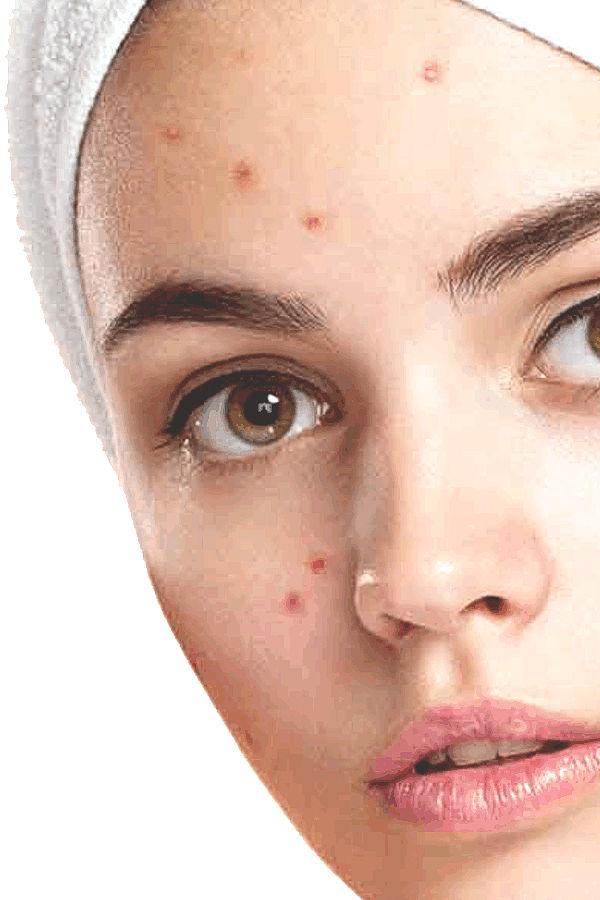 A la testosterona subida a las mujeres como curar el acné